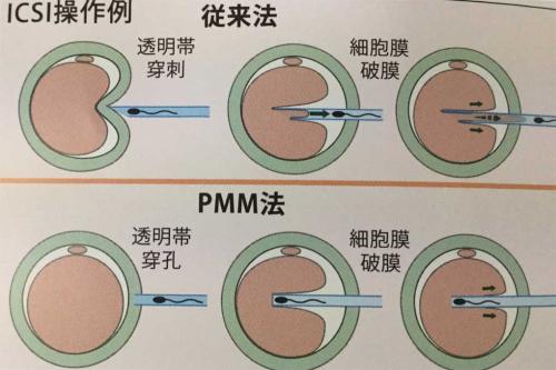 ICSI-PMM画像crds